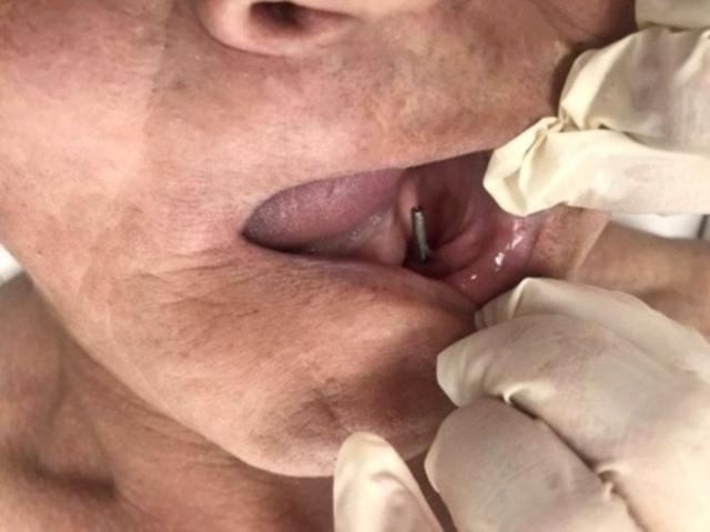Rusya'ya bağlı Buryat Cumhuriyeti'nde bir diş hekiminin hastasına yaptığı tedavi dehşete düşürdü.