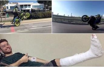Motosikletli maganda ayağını kırınca yakalandı