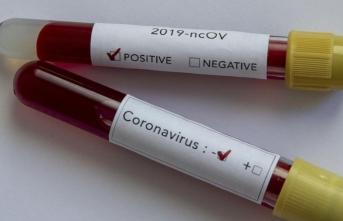 Koronavirüsle ilgili ilginç iddia: Sakın evde denemeyin!
