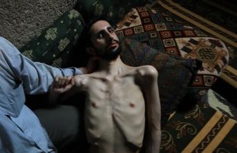 Esed rejiminin sakat bıraktığı Abdullah 35 kiloya kadar düştü
