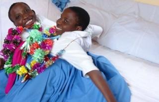 Tanzanyalı yapışık ikizler 21 yaşında öldü