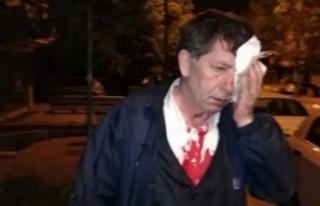 Yeniçağ Gazetesi yazarına beyzbol sopalı saldırı