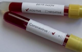 Avrasya ülkelerinde koronavirüs vakaları artmaya...