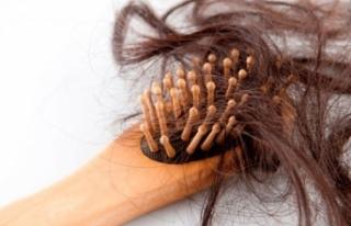 Saç dökülmesi neden olur, nasıl önlenebilir?
