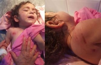 Rottweiler dehşeti! 2 yaşındaki küçük kızı parçaladı