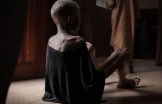 BM'den korkunç rapor: 821 milyondan fazla insan aç!