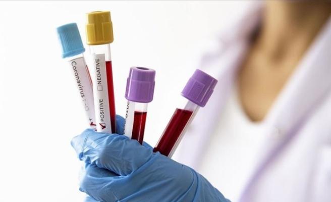 Yozgatspor'da çok sayıda koronavirüs vakası